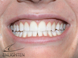 Teeth After Enlighten Tooth Whitening