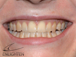 Teeth before Enlighten Tooth Whitening